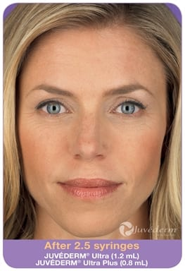 Woman's face, After 2,5 syringes Juvederm Ultra (1,2 ml) Juvederm Ultra Plus (0,8 ml)