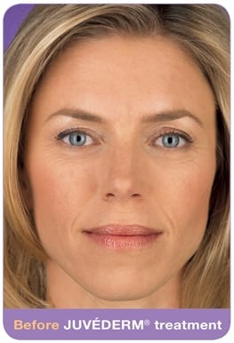 Woman's face, before Juvederm treatment, patient 2