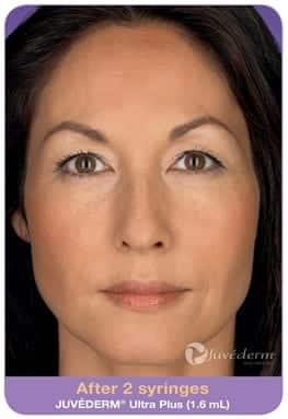 Woman's face, After 2 syringes Juvederm Ultra Plus (1,6 ml), patient 1