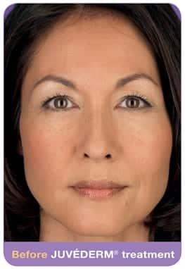 Woman's face, before Juvederm treatment, patient 1