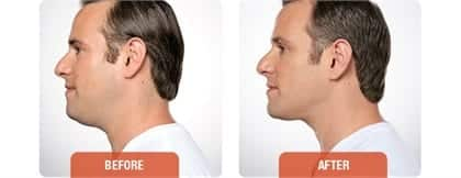 Male neck, Before and After Kybella Treatment, side view, patient 2