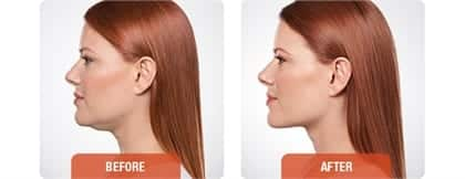 Woman's neck, Before and After Kybella Treatment, side view, patient 1