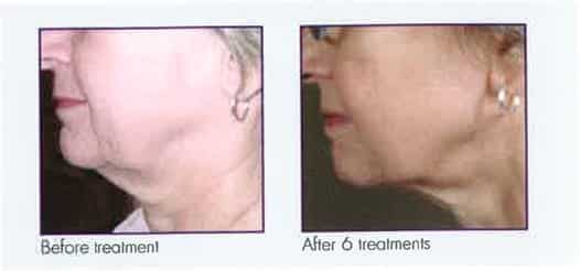 Female face, before and after 6 Microneedling treatments, side view, patient 1