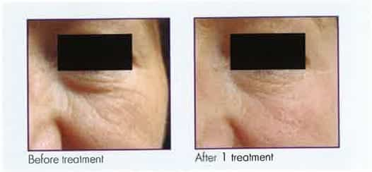 Female face, before and after 1 Microneedling treatment, front view, patient 2