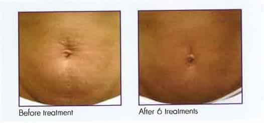 Female abdomen, before and after 6 Microneedling treatments, front view, patient 4