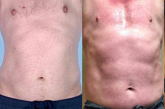 Male body (abdomen), before and after Emsculpting treatment, front view, patient 2