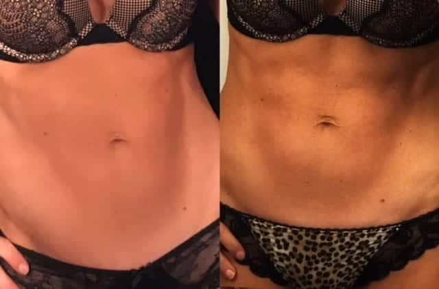 Woman's body (abdomen), before and after Emsculpting treatment, front view, patient 1