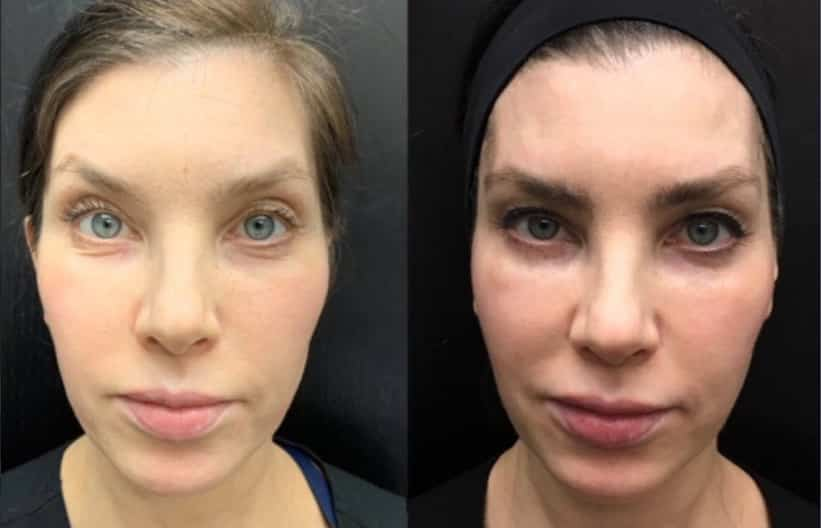 Woman's face before and after Botox treatment, front view