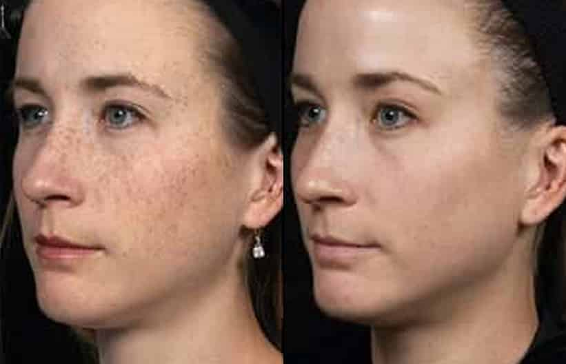 Woman's face, before and after Fraxel Dual treatment, oblique view, patient 1