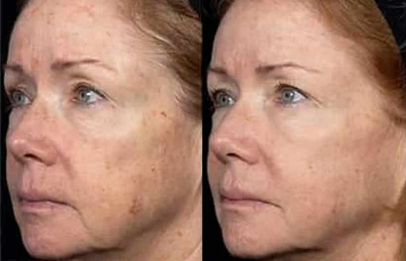 Woman's face, before and after Fraxel Dual treatment, oblique view, patient 2