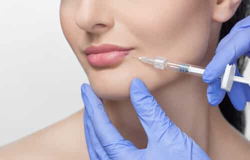 Female lips at injections: Perfect Pout with - Lip Shaping Treatments, oblique view